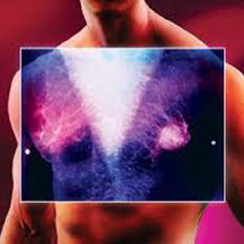 Can men get breast cancer?